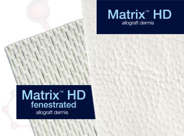 Matrix HD