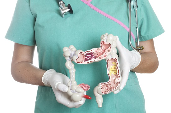 doctor holding intestine diagram